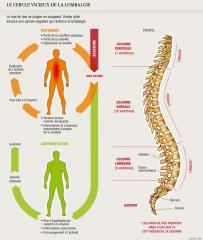 dos,transverse,lombaire,scoliose,hernie discale,posture,douleur